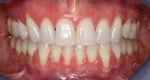 Free Gingival Graft - Before Procedure