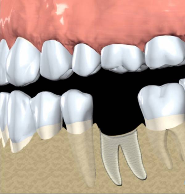 Bone graft placed to preserve site for future implant placement