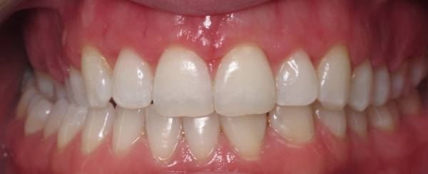 Crown Lengthening - After procedure