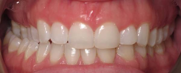 Crown Lengthening - Before procedure