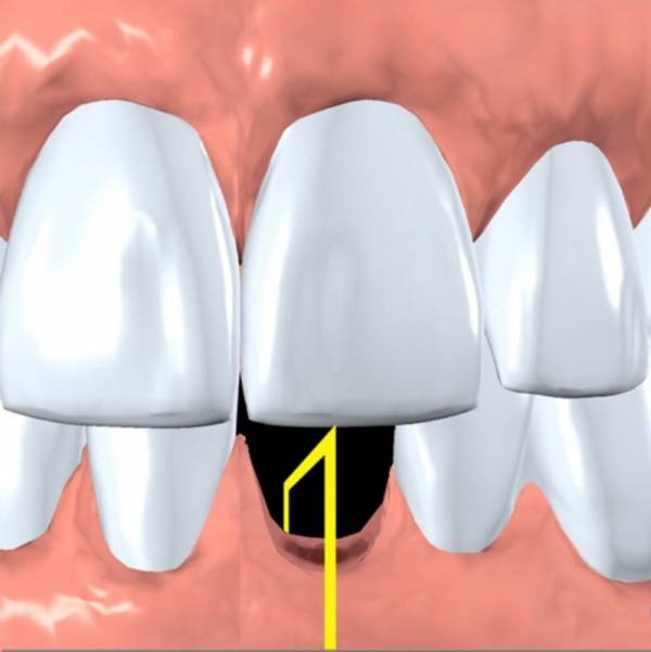 Site of a missing tooth that will be replaced with an implant