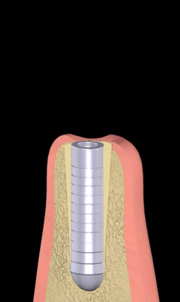 The space around the implant is then filled with a bone graft if necessary