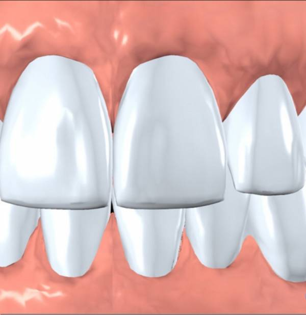 The implant restoration blends in with your natural smile